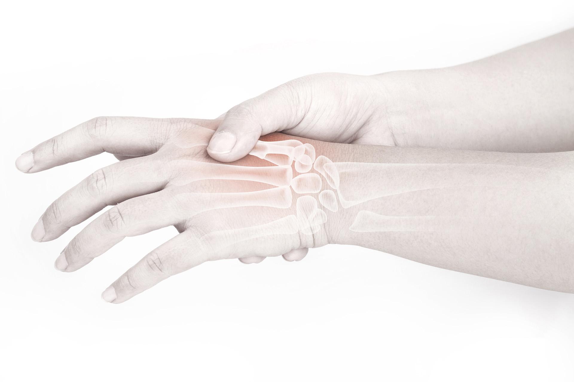 Capsulitis en la articulación interfalángica de la mano